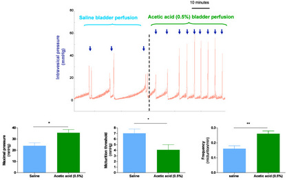 Figure 1: Representative cystometrograms showing the effect of acetic acid-induced bladder hyperactivity in anesthetized female rat. Arrows indicate the voiding contractions. (Pelvipharm, internal data).
