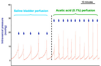 Figure 2: Representative cystometrograms showing the effect of acetic acid-induced bladder hyperactivity in anesthetized female guinea pig. Arrows indicate the voiding contractions. (Pelvipharm, internal data).