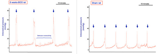 Figure 1: Representative cystometrograms in conscious 6 weeks BOO and sham rats. Arrows indicate the voiding contractions. Detrusor overactivity occurred in the BOO rat but were not detected in sham rats. (Pelvipharm, internal data).