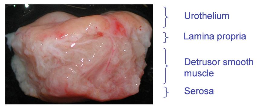 PELVIPHARM - Human bladder tissue (control patients)
