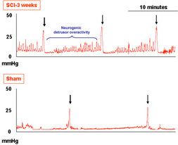 Figure 1: Representative cystometrograms in conscious 3 weeks SCI and sham rats. Arrows indicate the voiding contractions. Neurogenic detrusor overactivity occured in the SCI rat but not in sham rats. (Pelvipharm, internal data).