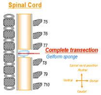 Figure 2: Complete transection between vertebral T7-T8.