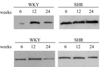 Figure 1: Representative immunoblots of α-actin in the corpus cavernosum (upper panel) and aorta (lower panel) of WKY and SHR at 6, 12 and 24 wk of age. Equal amounts of protein were loaded on each lane. (from Behr-Roussel et. al 2005).