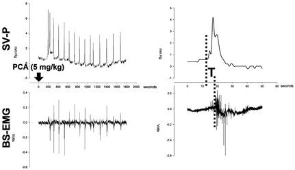 Figure 1: Example of recording of seminal vesicle pressure (SV-P) and bulbospongious muscle electromyogram (BS-EMG) during ejaculation induced by i.p. p-chloroamphetamine (PCA). On the left panel are illustrated the successive SVP and BS-EMG peaks that occur over the 30 min-period following PCA injection (5 mg/kg). Right panel: a sample response from the left panel shows the time shift (T) between the beginning of the SVP rise and the first consistent BS contraction (Pelvipharm, internal data).