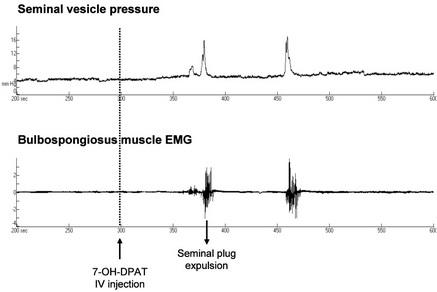 Figure 1:Example of recording of seminal vesicle pressure and bulbospongiosus muscle electromyogram (EMG) during ejaculation induced by i.v. 7-OH-DPAT in isoflurane anaesthetised rat (Pelvipharm, internal data).