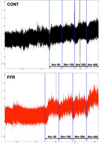 Figure 2: Example of original recordings of the pressor response to increasing doses of norepinephrine (0 to 400 ng/kg/min) in chronically instrumented control (CONT, upper panel) and fructose-fed rats (FFR, lower panel) (Pelvipharm, internal data).